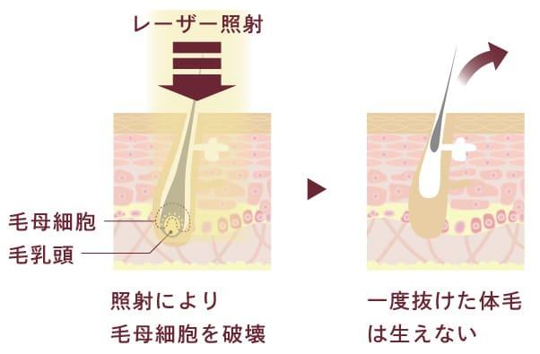 大西メディカルで使用する医療レーザーの仕組み断面図。照射により毛母細胞を破壊。一度抜けた体毛は生えない。