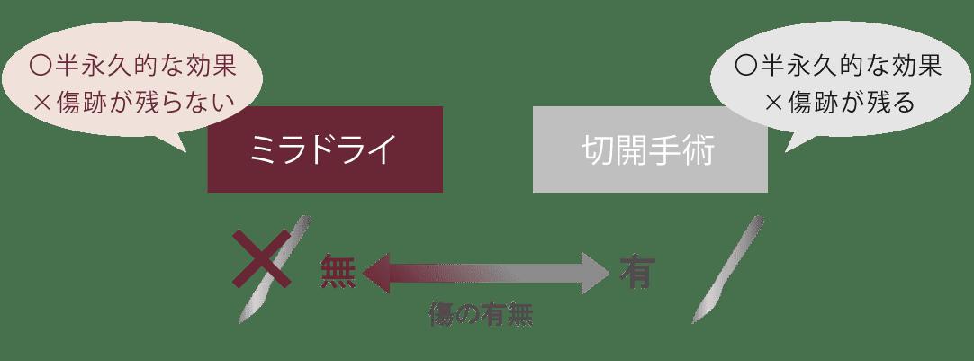ミラドライと他の治療の比較図