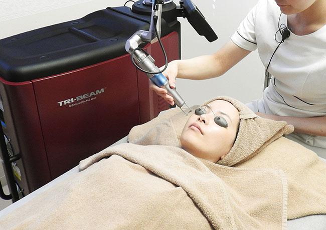 当院で使用する医療用レーザー機器「TRY-BEAM(トライビーム)」でシミ・くすみ治療をしている様子