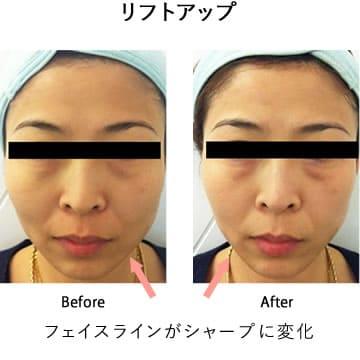 施術後フェイスラインがシャープになりリフトアップの効果を得た女性の症例写真