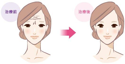 眉間・額の表情シワ