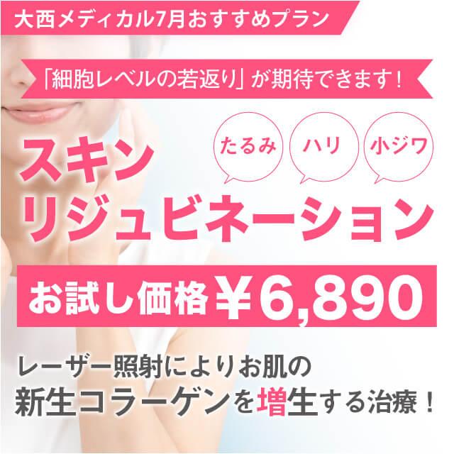 大西メディカル7月おすすめプラン スキンリジュビネーションお試し価格¥6890